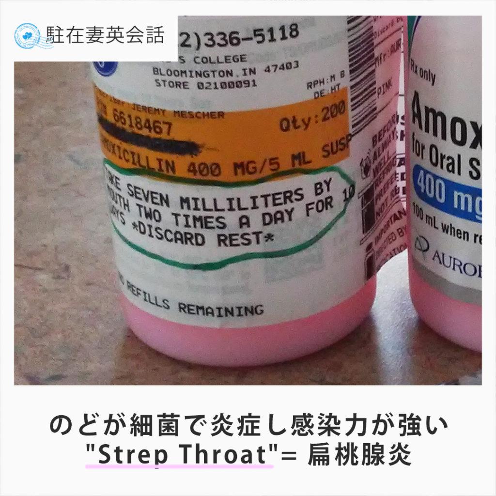 strep throat 溶連菌による扁桃腺炎